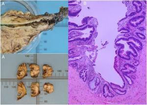 A) Imagen macroscópica de vía biliar resecada en pancreatoduodenectomía, con 2 sitios de tumor (cerca de la bifurcación de los hepáticos y de la ampolla de Vater). B) Neoplasia papilar intraductal con focos de displasia de alto grado, en el colédoco distal extra- e intrapancreático, focos microscópicos de adenocarcinoma bien diferenciado (G1) de tipo intestinal invasivo a la pared del colédoco, con displasia de bajo y alto grado en el borde quirúrgico de la vía biliar.