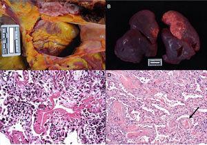 a. Derrame pericárdico serosanguinolento (40cc) en varón de 70 años. b. Pulmones con peso combinado de 1.550g. c. Mujer de 77 años que falleció por enfermedad de COVID a los 6 días de su ingreso. Ventilación mecánica. Imagen histológica del pulmón en la que se aprecia daño alveolar difuso con membranas hialinas, hiperplasia y descamación de neumocitos, fibroblastos e infiltrado inflamatorio mononuclear intersticial (HE, ×10). d. Varón de 83 años que falleció a los 11 días del ingreso. En la imagen se observan tabiques ampliados con ligero infiltrado inflamatorio y fibrosis. La flecha señala un vaso trombosado (HE, ×10).