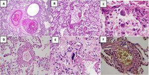 Hallazgos microscópicos en los pulmones. A) Micro trombos. H&E 40X B) Membranas hialinas H&E 200X C) Células gigantes multinucleadas H&E 400X D) Endotelialitis H&E 200X E) Megacariocito intravascular H&E 200X F) Daño endotelial EVG 400X.