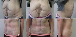 Caso n.o 2: Fotografías preoperatorias (arriba) y 12 meses postoperatorias (abajo).