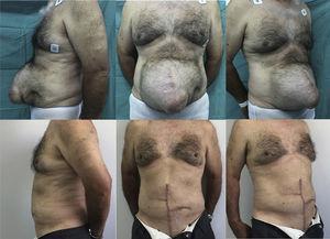 Caso n.o 5: Fotografías preoperatorias (arriba) y 3 semanas postoperatorias (abajo).