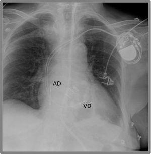Radiografía de tórax de un marcapasos bicameral. Se observa electrodo en aurícula derecha (AD) y en ventrículo derecho (VD).