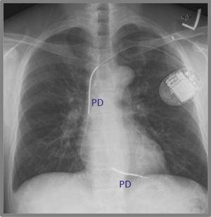 Radiografía de tórax de un cardiovertor-desfibrilador implantable unicameral, con ambas paletas desfibriladoras (PD) ubicadas a lo largo del electrodo del ventrículo derecho.