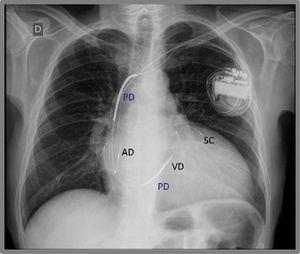 Radiografía de tórax de un marcapasos biventricular (terapia de resincronización cardíaca). Se observa un electrodo en la aurícula derecha (AD), en el seno coronario (SC) y en el ventrículo derecho (VD), con segmentos radioopacos a lo largo del electrodo del ventrículo derecho, que corresponden a las paletas desfibriladoras (PD).