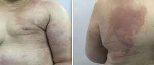 Placas eritematosas infiltradas, de aspecto erisipeloide en algunas zonas, localizadas en hemitórax anterior izquierdo, abdomen y espalda ipsilateral.