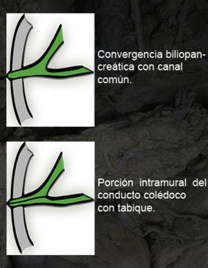 Esquema de la porción terminal del colédoco; superior: ausencia de porción intramural; inferior: presencia de porción intramural.