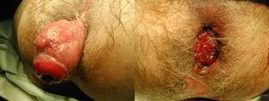 Fístula rectovaginal actínica. Descenso de colon con anastomosis coloanal diferida.