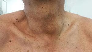 Se observa aumento de volumen cervical a la izquierda, de aproximadamente 5-6cm.