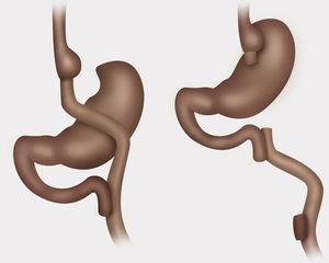 Comparación de Bypass gástrico con Y de Roux y anatomía normal restituida.