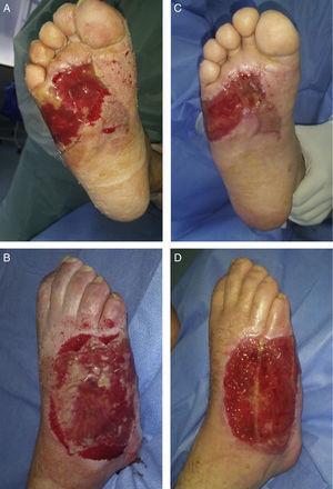 A y B. Cara plantar y dorsal del pie derecho con Integra® in situ. C y D. Cara plantar y dorsal del pie derecho luego de retirar la lámina de Silastic®.