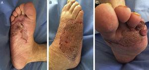 Imágenes al alta. A. Cara plantar del pie derecho. B. Cara dorsal del pie derecho. C. Cara plantar del pie izquierdo.