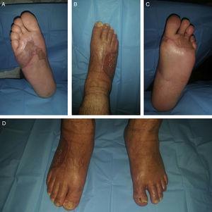 Control ambulatorio a las 3 semanas del alta. A. Cara plantar del pie derecho. B. Cara dorsal del pie derecho. C. Cara plantar del pie izquierdo. D. Paciente de pie.