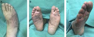 Control ambulatorio a los 10 meses del alta. A. Dorso del pie derecho. B. Cara plantar bilateral. C. Vista 45?? cara lateral del pie derecho
