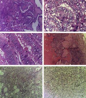 A)Carcinoma papilar de tiroides de variante clásica (H-E, ×10). B)Carcinoma papilar de tiroides, núcleos en vidrio esmerilado (H-E, ×40). C)Carcinoma papilar de tiroides de variante de células altas (H-E, ×40). D)Metástasis ganglionar de carcinoma papilar de tiroides de variante clásica (H-E, ×10). E, F)EAML; se observan elementos musculares, vasculares y adiposos (H-E, ×10).