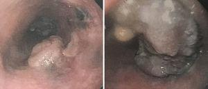 Endoscopia digestiva alta que muestra 2 lesiones exofíticas y friables a 25 y 30cm de la arcada dentaria.
