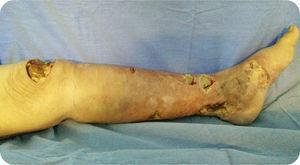 Presentación inicial, eritema difuso y zonas fluctuantes en pierna izquierda.