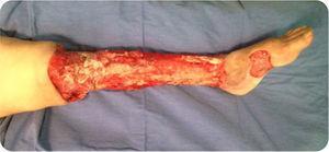 Resultado luego de múltiples aseos quirúrgicos, eliminando la totalidad del tejido comprometido por la silicona.
