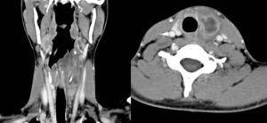 Tomografía computarizada del cuello con contraste intravenoso del caso n.o 1. Cortes coronal y axial en los que se evidencia absceso en relación con seno piriforme izquierdo y polo superior de lóbulo tiroideo izquierdo.