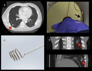 a) TC: nódulo pulmonar del lóbulo inferior derecho (flecha roja). b) TC: aguja de marcación in situ (flecha negra). c) Lung marker system (LMS). d) TC: LMS adyacente al nódulo (flechas rojas).