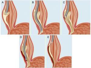 Esquema representativo de los pasos críticos de la técnica POEM. A) Elevación e incisión de la mucosa esofágica. B) Creación del túnel submucoso. C) Miotomía de las fibras circulares internas de la pared esofágica. D) Extensión de la miotomía hasta el estómago. E) Cierre del defecto en la mucosa.Fuente: modificado con el permiso del Dr. H. Inoue.