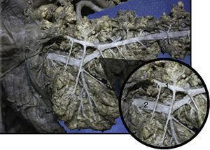 Vista anterior de sistema ductal pancreático. (1) Conducto pancreático accesorio (Santorini); (2) conducto pancreático principal (Wirsung). Flecha azul representando flujo de sistema ductal descompresivo.