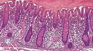 HyE 200x, mucosa de colon hemorrágica con trombosis de la submucosa.