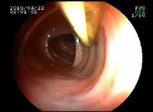 Colonoscopia. Trayecto intraluminal del catéter.