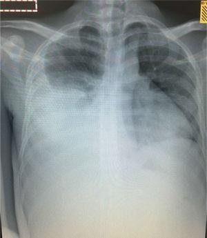 Radiografía de tórax: opacidad homogénea que ocupa la mayor parte del hemitórax derecho dada principalmente por derrame pleural que borra el contorno derecho y el hemidiafragma del mismo lado.