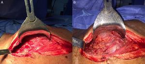 Hallazgos intraoperatorios de laparotomía exploratoria donde se encuentran múltiples adherencias peritoneales (A), moderado líquido ascítico con lesiones granulomatosas en epiplón y peritoneo (B).