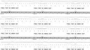 Estado tensional de los vanos próximos al tramo atirantado, bajo la combinación frecuente a tiempo infinito (MPa).