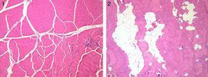 Muestra representativa de los cortes histológicos (100×) con tinción H-E de tejido de cuádriceps intervenido (2) vs control (1) del grupo sacrificado a las 12 semanas. Se observan grupos confluentes de tejido adiposo que disecan las fibras musculares.