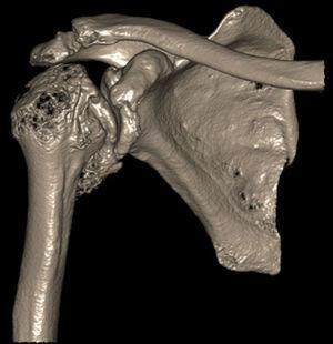 TC del hombro derecho. Se aprecia colapso articular de la cabeza humeral, incongruencia articular, importantes cambios degenerativos, artrosis de fosa glenoidea y gran osteofito inferior, que determinan el bloqueo mecánico descrito.