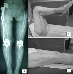 A. Telemetría al final del seguimiento de una de las pacientes con fractura interprotésica. B y C. Balance articular al final del seguimiento.