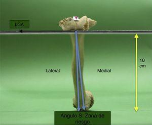 En esta figura se observa el ángulo S, formado por las 2 flechas azules, ambas originadas en un punto localizado en la cara lateral de la tróclea del codo, dirigidas hacia los labios medial y lateral del SB. S: ángulo del surco bicipital; SB: surco bicipital.