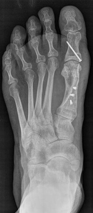 Radiografía AP de pie, luego de una osteotomía tipo Scarf. Se muestra con 3 tornillos de fijación al primer metatarsiano.
