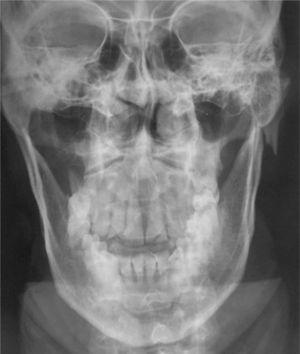 Radiografía PA de Cráneo.