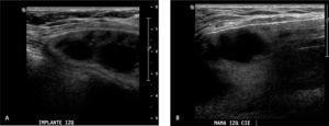 A y B Ecografía mamaria: implante izquierdo con contenido heterogéneo.