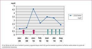Evolución de la creatinina plasmática en el tiempo