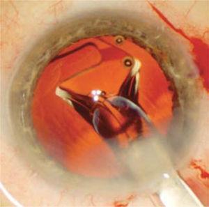 Se observa el LIO comenzando a expandirse dentro del saco capsular a medida que es inyectado a través de la herida operatoria. Este despliegue es suave y controlado para evitar dañar el saco capsular.