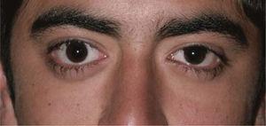 Foto de paciente adolescente con exoftálmo y retracción palpebral.