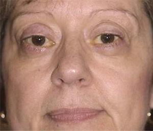 Foto postoperatoria del resultado final de la misma paciente luego de ser sometida a mútiples cirugía reparadoras orbitarias y palpebrales.