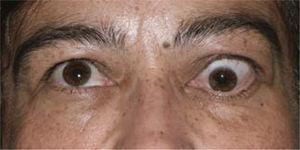 Foto de paciente con signos de actividad de la enfermedad: estrabismo, exoftálmo retracción y edema palpebral superior.