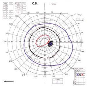 Campimetría de Goldman postoperatoria que muestra un aumento significativo del campo visual del paciente.