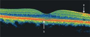 Tomografía de coherencia óptica (OCT) del área macular de un ojo normal. Las zonas más reflectantes tienen colores más cálidos (rojo). En el centro se observa la depresión foveal 1: epitelio pigmentario de la retina, 2: capa de fibras ópticas. En el sector nasal, en dirección a la papila, la capa de fibras ópticas es más gruesa.