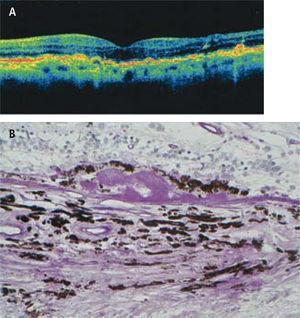 Drusas. A) En el OCT las drusas se aprecian como solevantamientos localizados de la banda del epitelio pigmentario (EP). B) Drusa. Corte histológico muestra acumulación de material amorfo bajo el EP. Tinción de PAS.