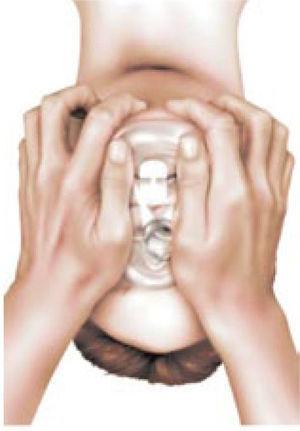 Técnica de Ventilación con mascarilla facial con dos manos.