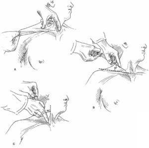 Técnica de los Puntos de Referencia Anatómico (TPRA). A)Abordaje Subclavio B)Abordaje yugular interno posterior C)Abordaje yugular interno anterior