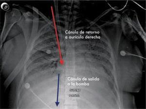 ECMO Veno Venoso: Rx de tórax que muestra cánula de retorno desde el ECMO hacia el paciente en aurícula derecha y la cánula de salida hacia el circuito se ve a nivel del diafragma y sale por vena femoral. Paciente con Influenza por AH1N1.