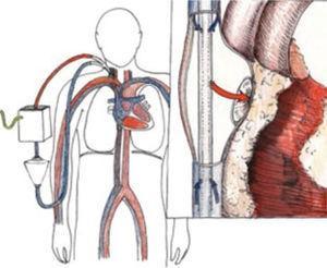 ECMO Veno Venoso la salida y retorno se hace por la vena yugular derecha, en el dibujo del detalle se observa la llegada de sangre oxigenada a la aurícula derecha y la extracción desde la vena cava inferior y superior
