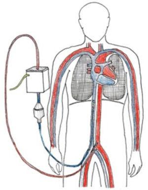 ECMO Veno Arterial: dibujo con configuración habitual que muestra drenaje por vía femoral y reinfusión por vía arterial femoral.